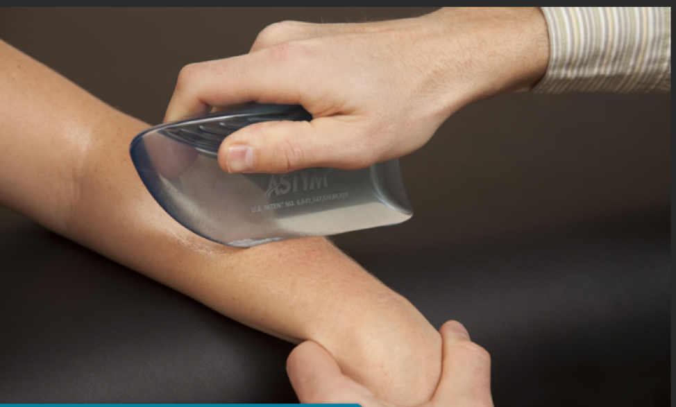 When should I see a Physical Therapist for Astym?
