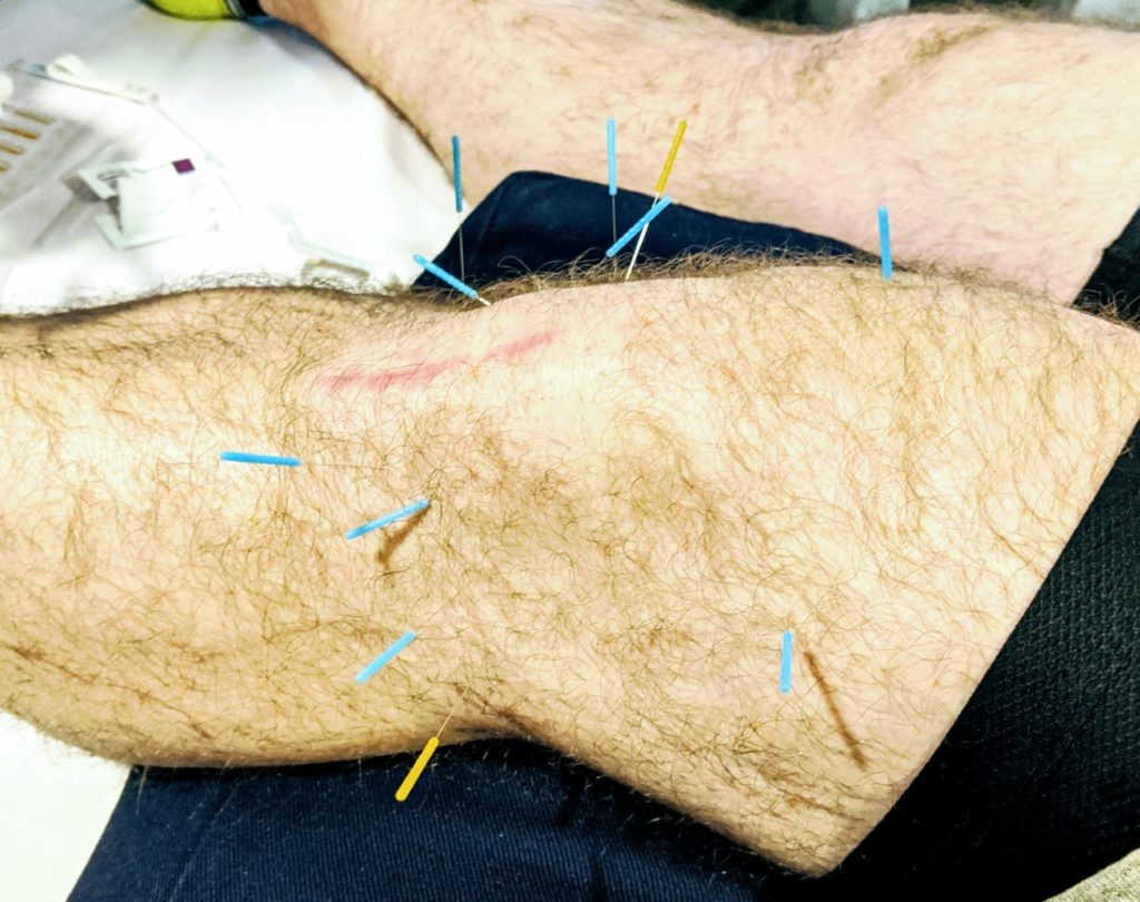 Understanding Dry Needling and How It Could Help You!